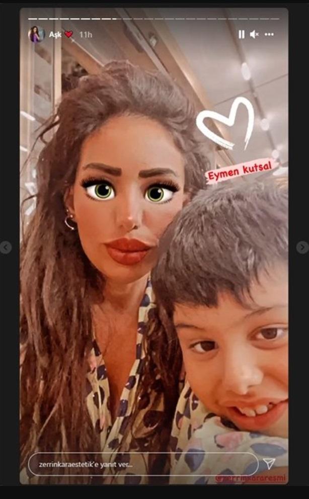 Kutsal Hazar. Mujer atropella a su sobrino de 8 años